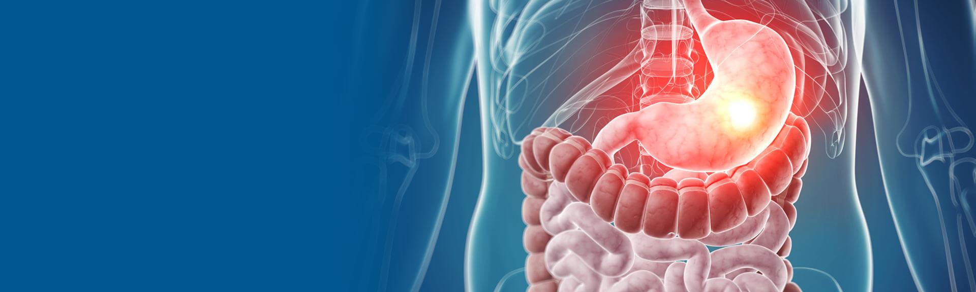 Cirurgia videolaparoscópica do aparelho digestivo
